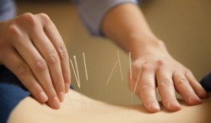 acupuncture handling needles